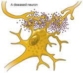 Glutamate toxicity in ALS is much researched