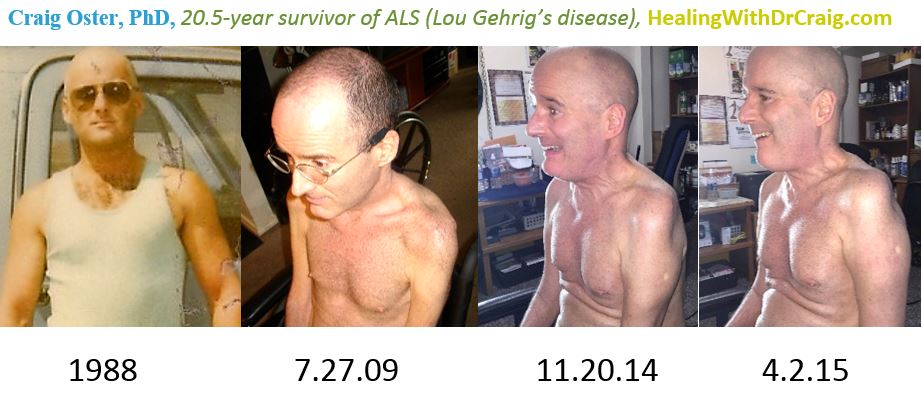 Book Chapter Improving ALS Symptoms By 20 5 Year ALS